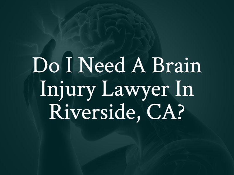 Do I need a Riverside, CA brain injury lawyer?